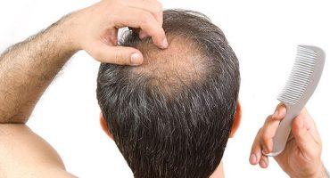 alopecia-androgenetica-quali-sono-i-geni