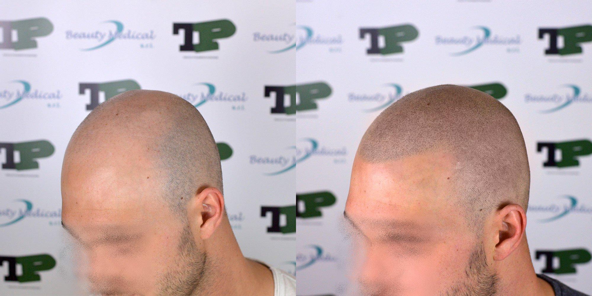 tricopigmentazione-una-soluzione-per-mascherare-la-perdita-dei-capelli