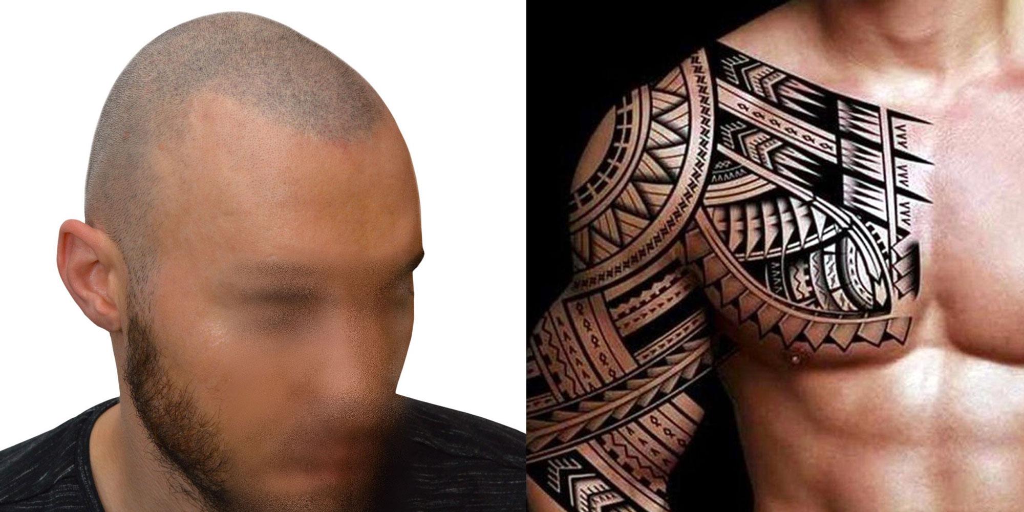 differenze-tra-tricopigmentazione-e-tatuaggio